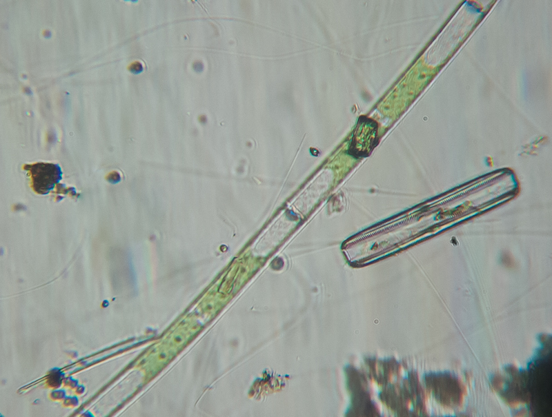 Algae and diatom